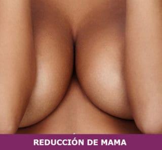 reduccion mama