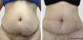 abdominoplastia-41