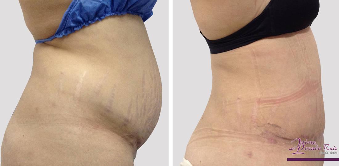 abdominoplastia-42