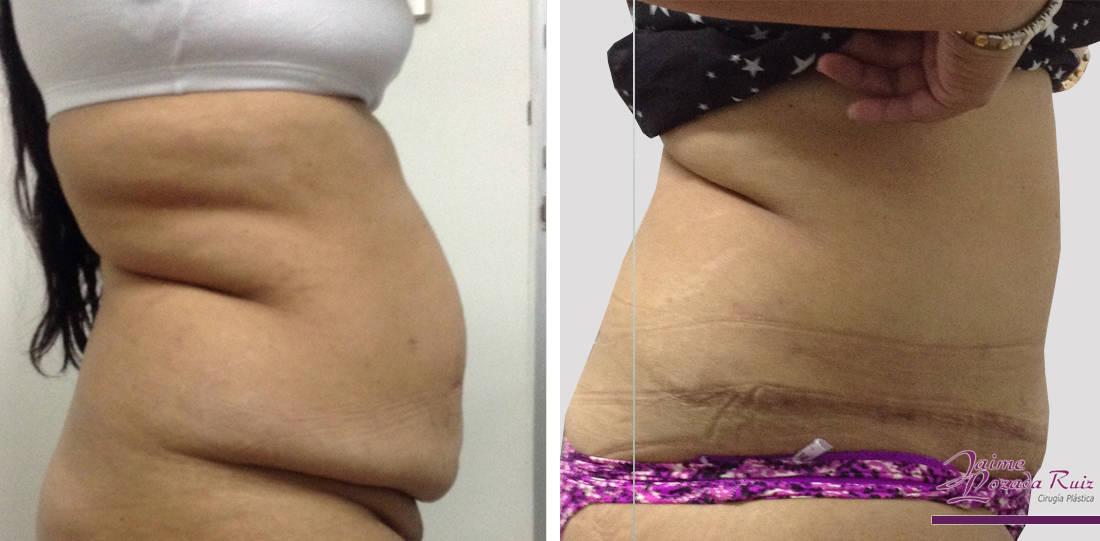 abdominoplastia-46