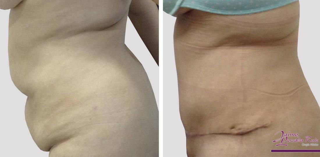 abdominoplastia-50